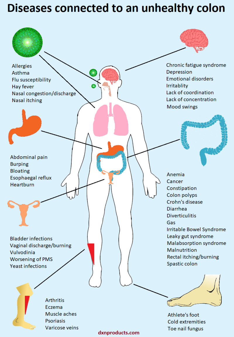 An unhealthy colon is a hotbed of numerous diseases.